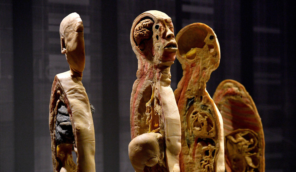 Switzerland China An Exhibition Of Chinese Human Bodies Cancelled